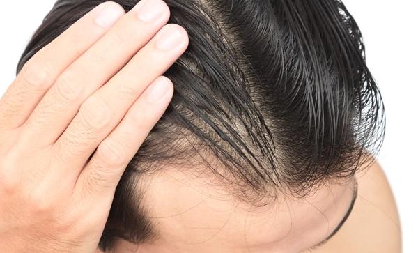 【薄毛予防と対策】誰でも薄毛になるリスクはある