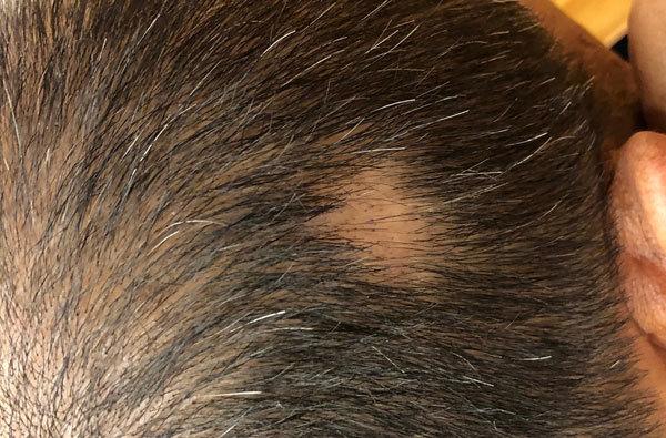 もし円形脱毛症になってしまったら、どのような対策をすれば効果的?