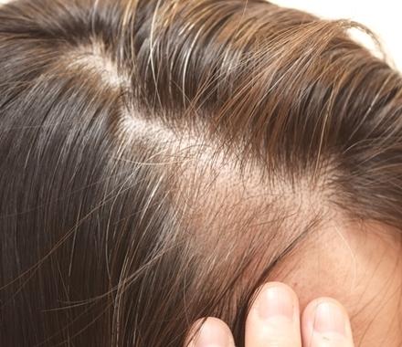 薄毛で悩む女性におすすめ!薄毛がわかりにくい髪型とは